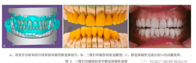 3D打印医疗行业深度解析:3D打印在口腔美学修复中的应用 (1).png